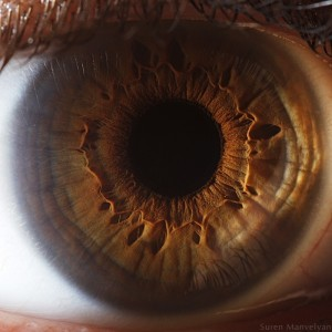 Slit Lamp Photography