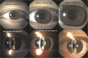 Slit Lamp Photography Illumination