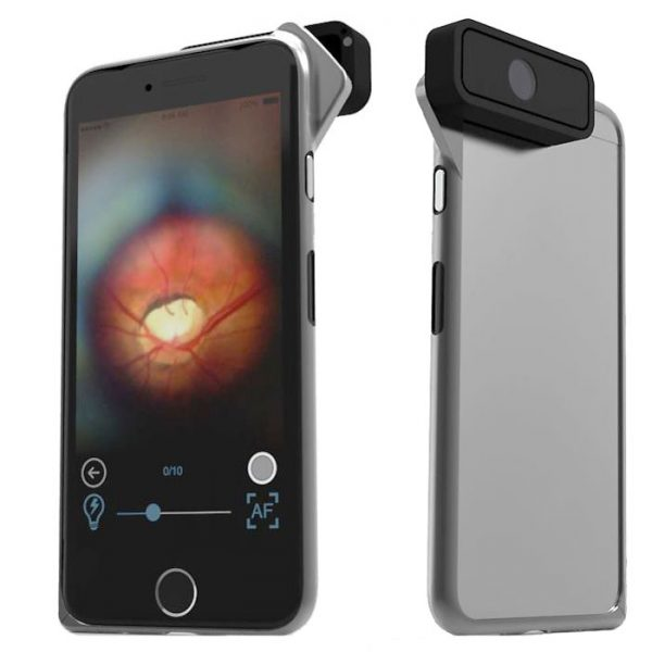 D-Eye Portable Ophthalmoscope